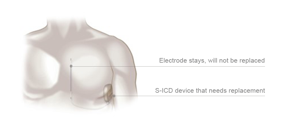 s-icd device replacement needed