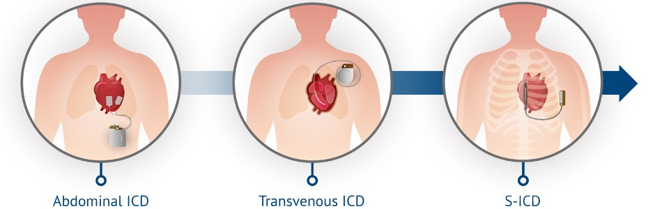 Illustration of the S-ICD vs Traditional ICDs